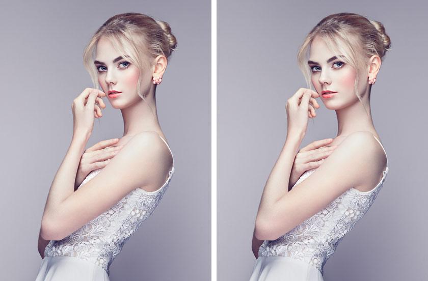Kinnpartie und Gesichtsbreite optimieren