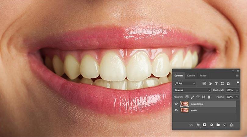 Ausgangsbild - verfärbte Zähne