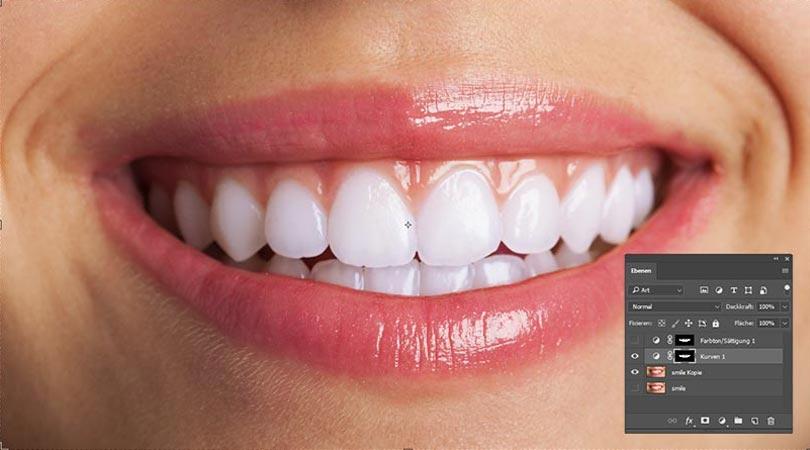 weiße zähne mittels gradation