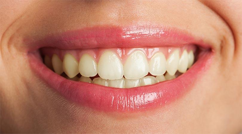 Strahlend weiße Zähne mit Photoshop 1